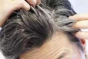 有了白头发千万不要急着拔当心拔出这种病