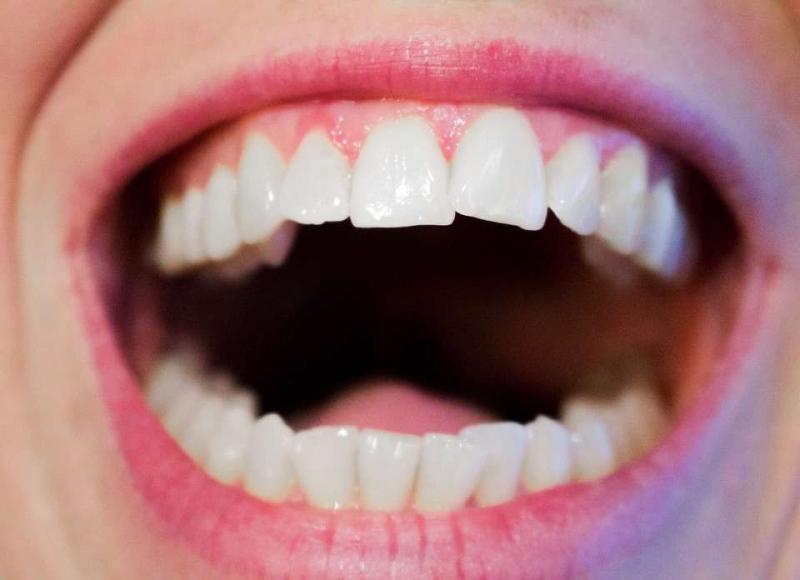 牙科诊所洗牙收费标准多长时间洗牙一次最好
